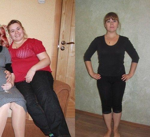 ожирение неправильное питание гиподинамия